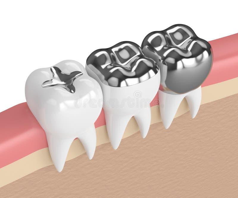 3d rendono dei denti con differenti tipi di fillin dell'amalgama dentaria royalty illustrazione gratis