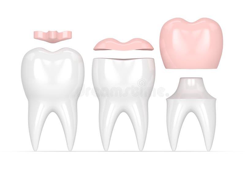3d rendono dei denti con differenti tipi di materiali da otturazione dentari illustrazione vettoriale