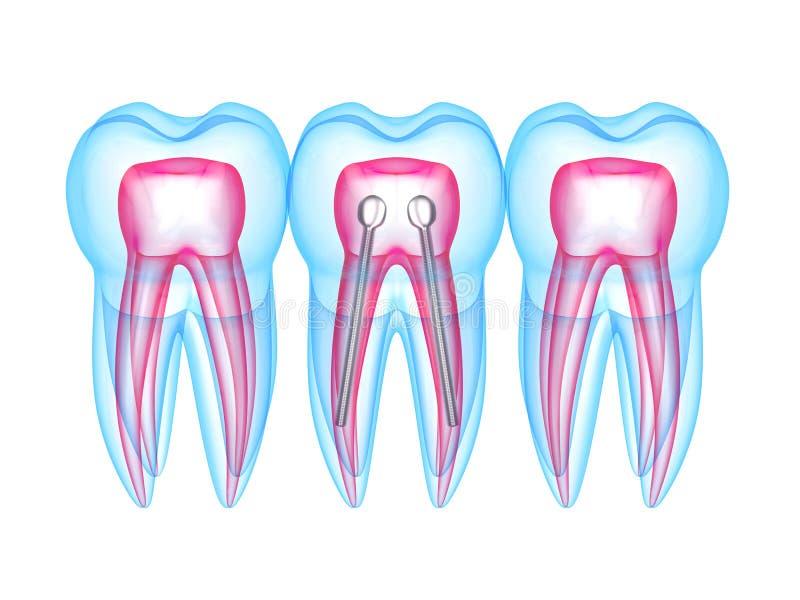 3d rendono dei denti dei raggi x con la posta dentaria di acciaio inossidabile illustrazione vettoriale
