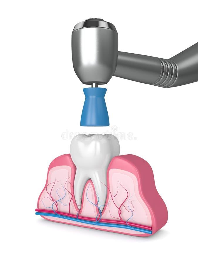 3d rendono del dente con handpiece dentario e la tazza prophy di lucidatura illustrazione vettoriale