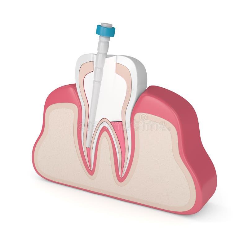 3d rendono del dente con la guttaperca, la posta della fibra ed il materiale da otturazione illustrazione di stock