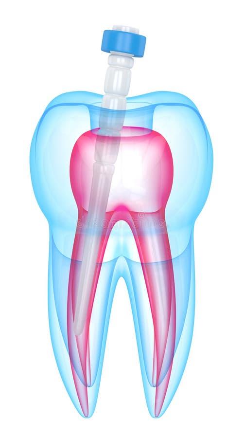 3d rendono del dente con la posta della fibra sopra bianco illustrazione di stock
