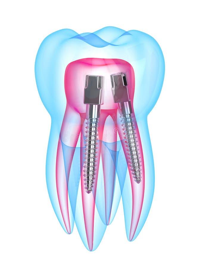 3d rendono del dente dei raggi x con la posta dentaria di acciaio inossidabile illustrazione vettoriale