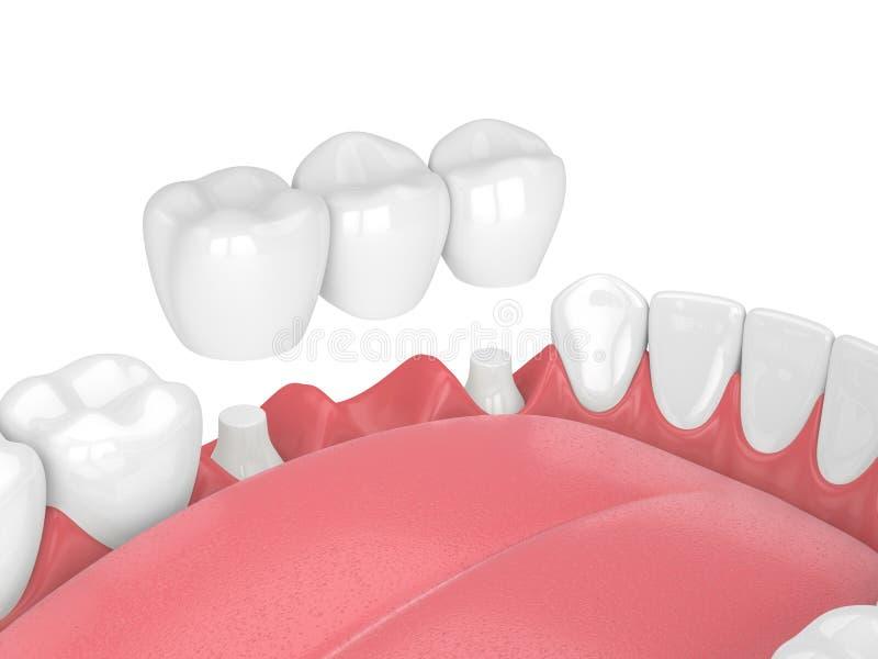 3d Rinden De Mandíbula Con El Puente Dental Stock de ilustración ...