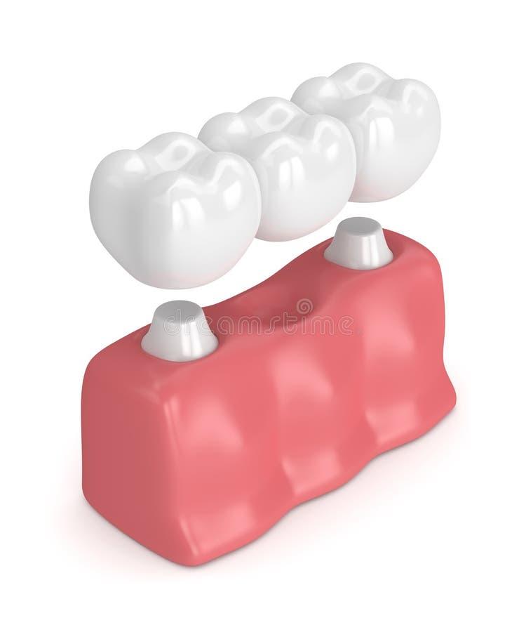 3d rinden del puente dental con las coronas dentales libre illustration