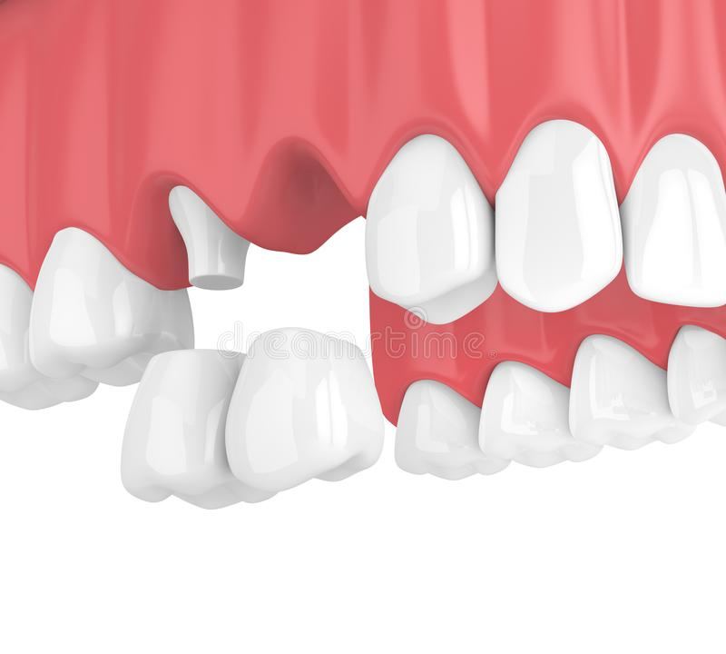 3d rinden del puente voladizo dental con las coronas en mandíbula superior libre illustration