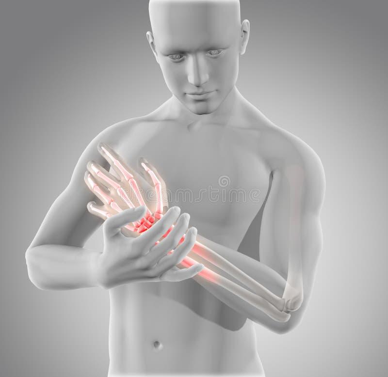 3D smärtar det manliga diagramet hållande handled in stock illustrationer