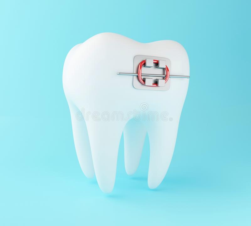 3D Tooth with braces. vector illustration