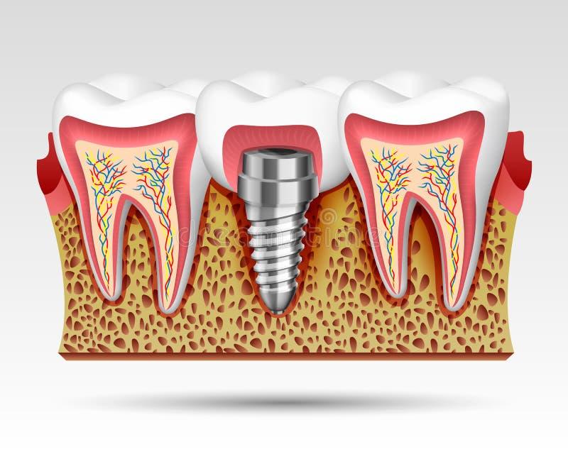 3d zęby w cięciu z nerwów zakończeniami ilustracji
