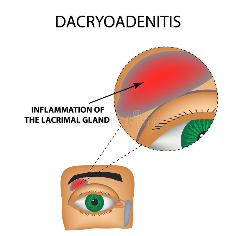 Dacryoadenitis. Inflammation of the lacrimal gland. The structure of the eye. Infographics. Vector illustration on isolated background stock illustration