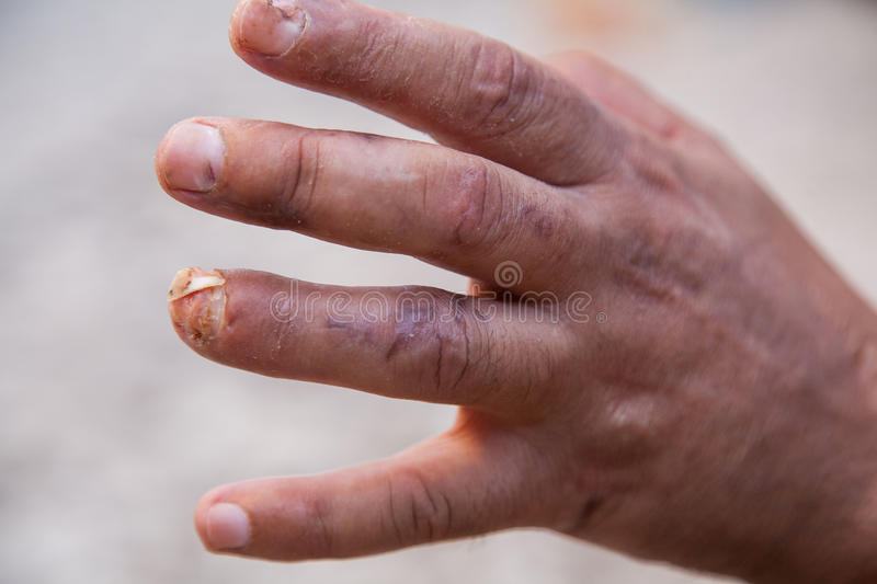 Damaged finger after operation. Man's hand with stitches and pins still in place from surgery to repair damage from Dupuytren's Contracture of pinky finger royalty free stock image