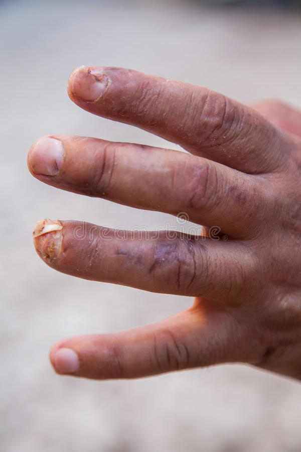 Damaged finger after operation. Man's hand with stitches and pins still in place from surgery to repair damage from Dupuytren's Contracture of pinky finger stock photo