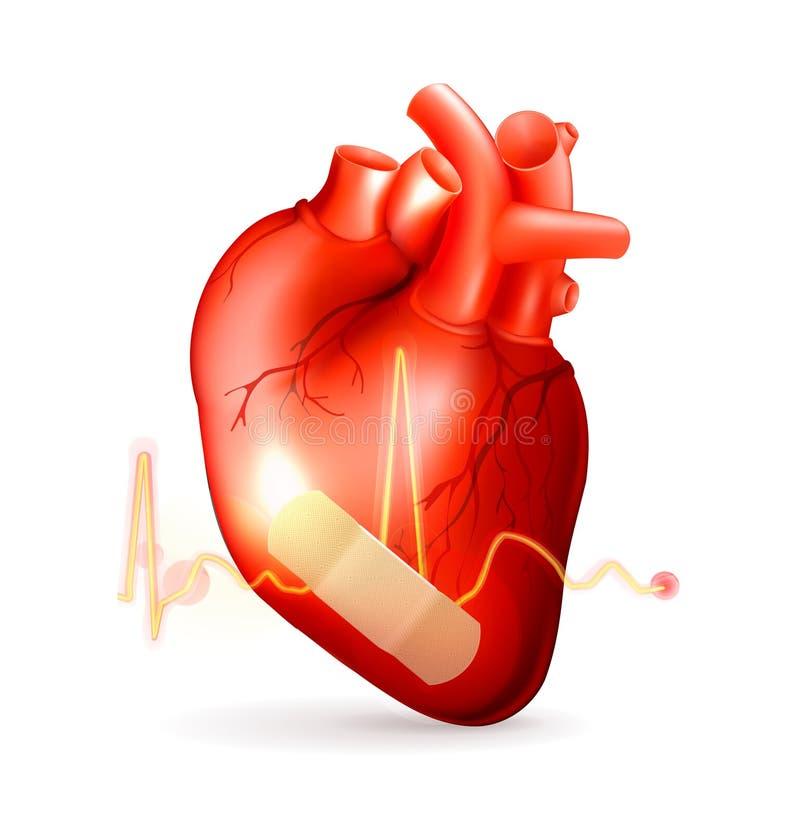 Download Damaged heart stock vector. Illustration of heart, life - 24329049