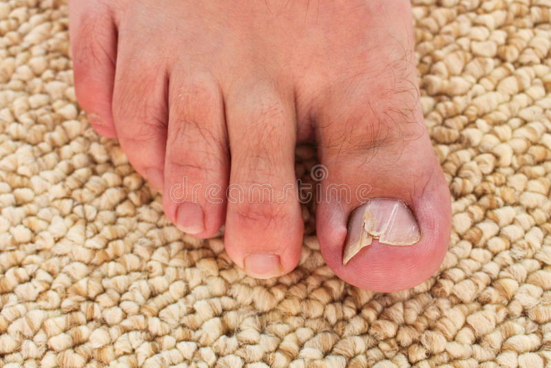 Damaged toenail. Foot closeup. The thumb on the man's leg. stock photo