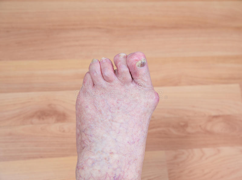 Damaged toes. Of a senior person royalty free stock photography