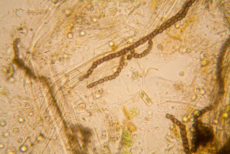 Dammvattenplankton och alger på mikroskopet Nostoc kommun royaltyfri fotografi