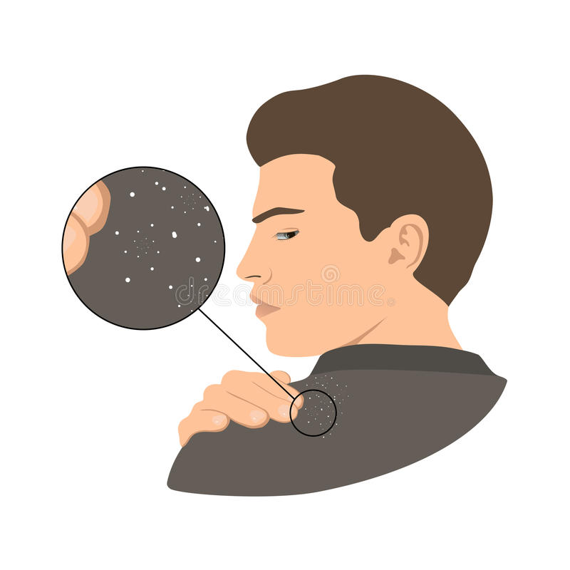dandruff vector illustratie