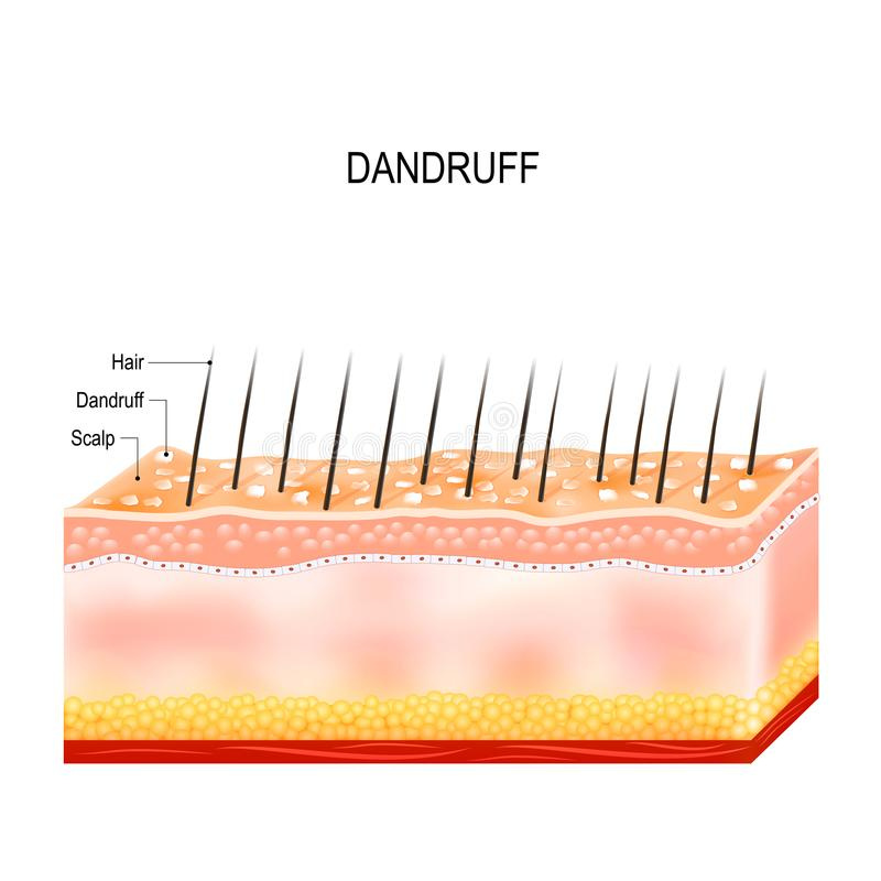 Dandruff on hair scalp. Disorders of the scalp royalty free illustration