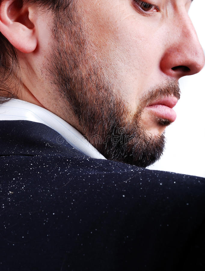 Dandruff issue on man's sholder royalty free stock photography