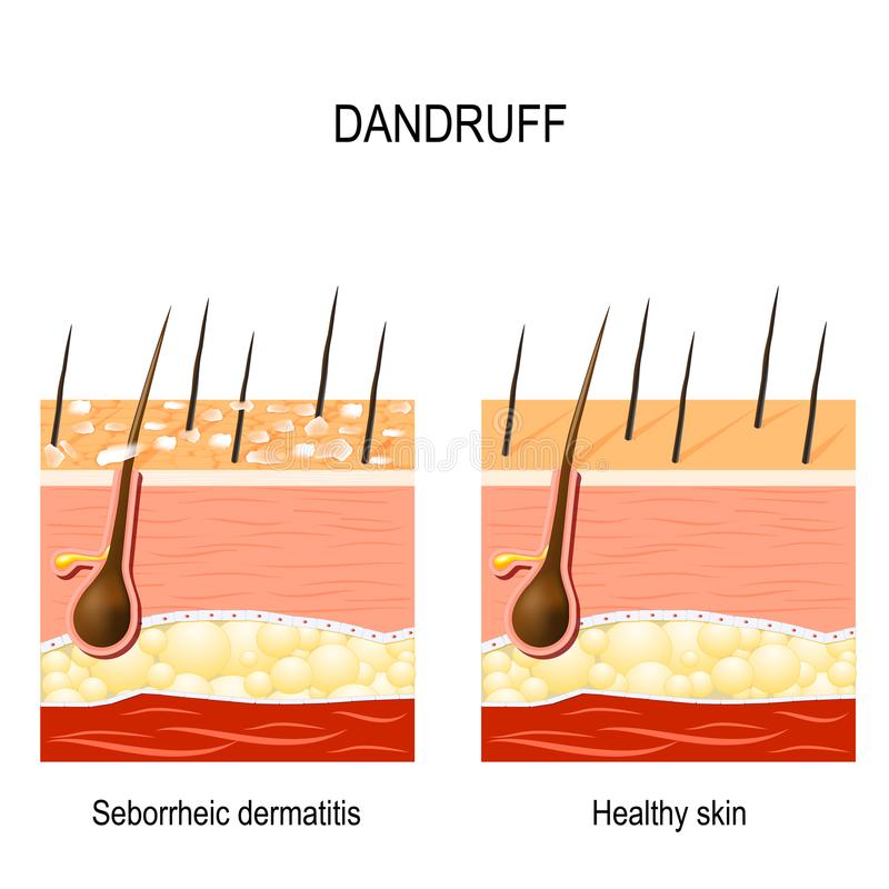 dandruff seborrheic dermatitis ilustracja wektor