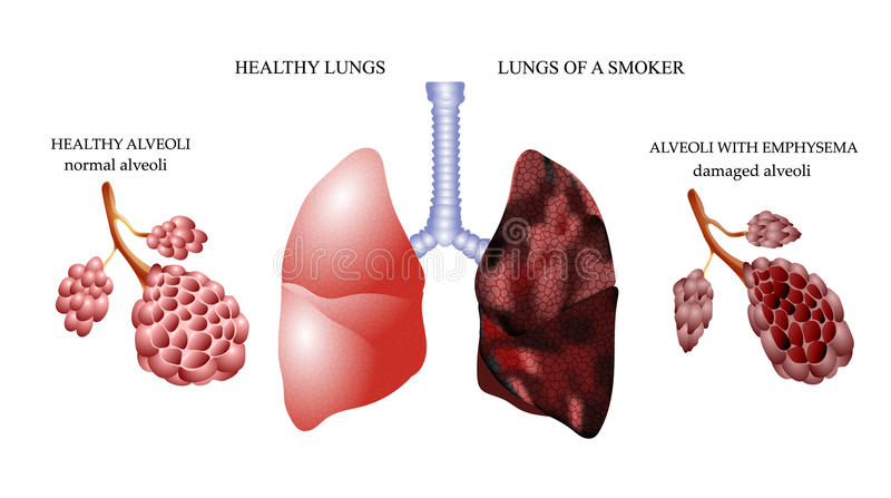 The dangers of Smoking. The lungs of a healthy person and smoker alveoli royalty free illustration
