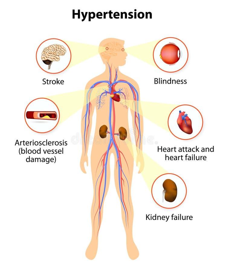 Danno da ipertensione illustrazione vettoriale