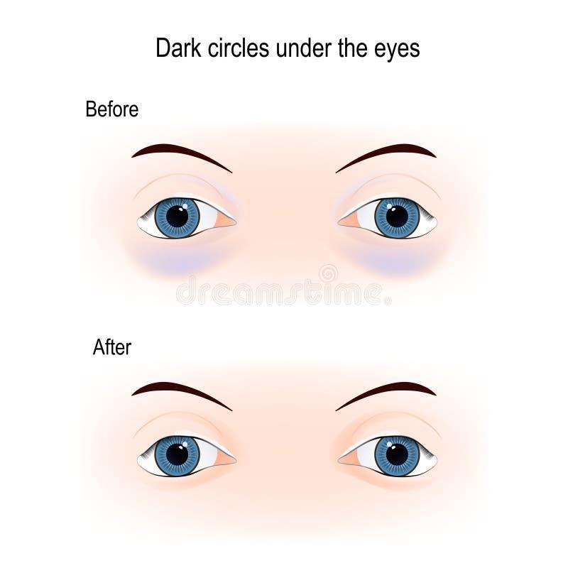 Dark circles under the eyes royalty free illustration