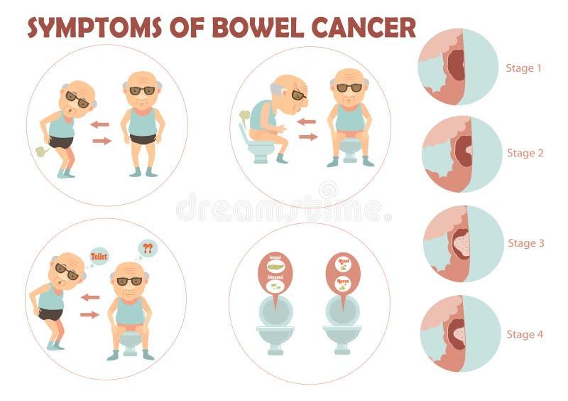 Darmkanker vector illustratie