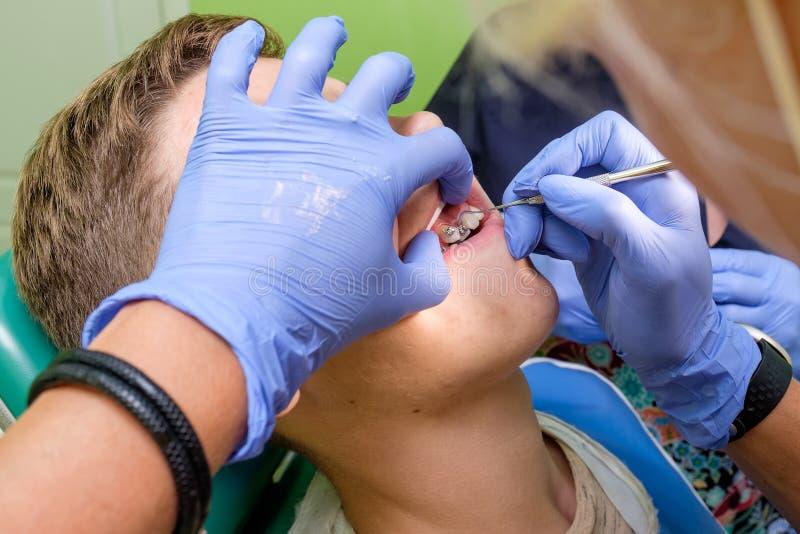 Das Doktor ` s übergibt die Befestigung von Klammern auf den Jugendlicher ` s Zähnen lizenzfreies stockbild