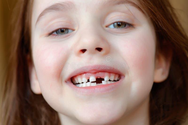 Das entzückende Mädchen lächelt mit dem Fall der ersten Milchzähne lizenzfreies stockfoto