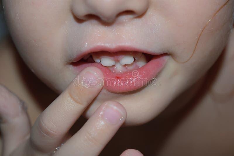 Das Mädchen hat eine defekte Wunde auf den Lippen Das Kind fiel und brach ihre Lippe stockfotografie