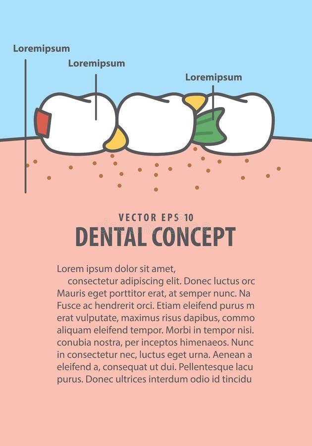 Das Plan-Lebensmittel, das in den Zähnen fest ist, gestalten Karikaturart zu Information oder Buch stock abbildung