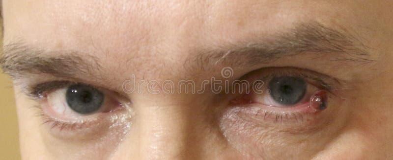 Das STADT-KRANKENHAUS, NEFTEYUGANSK, RUSSLAND - 15. Juli 2018: Hemolymphangioma oder lymphangioma auf dem untergeordneten Augenli stockfoto
