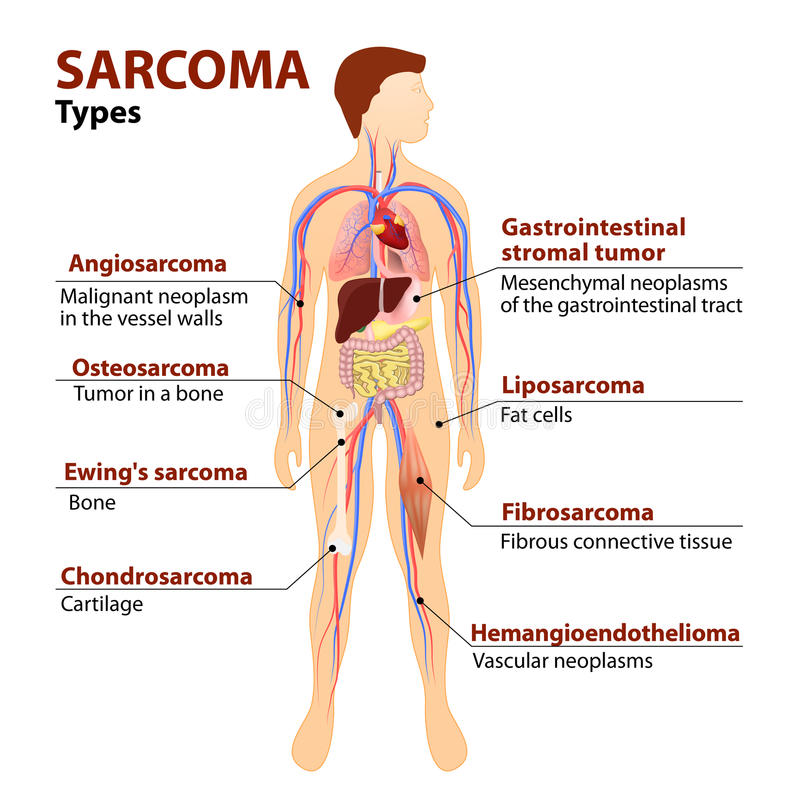Datilografa o sarcoma ilustração stock