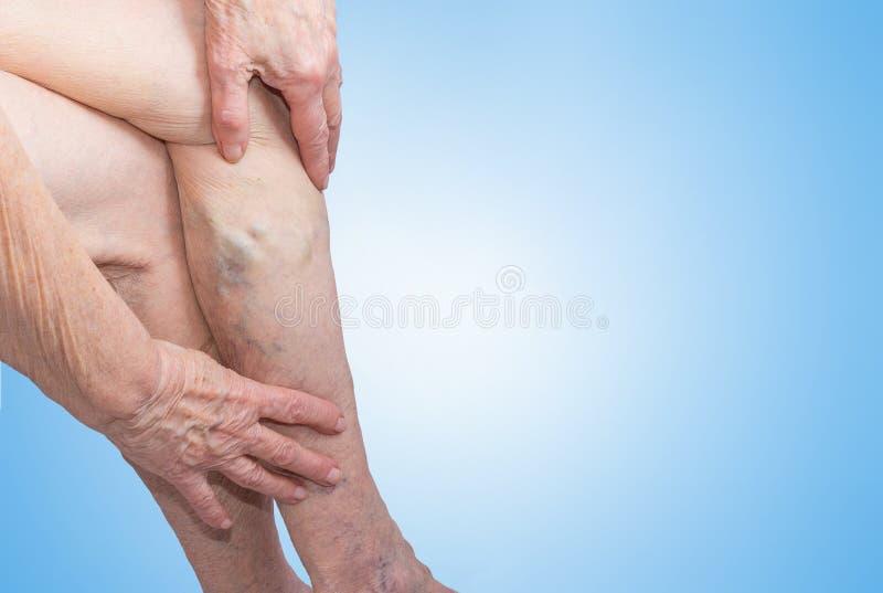 De åderbråcks åderna på ben av den gamla kvinnan på blått royaltyfri bild