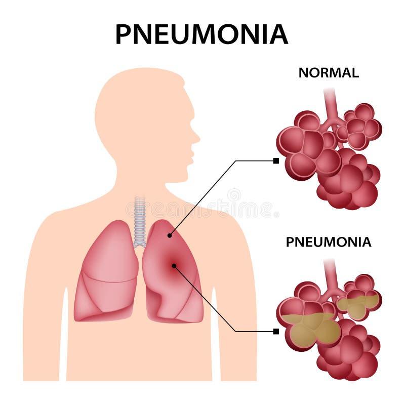 De achtergrond van het longontstekingsconcept, realistische stijl vector illustratie