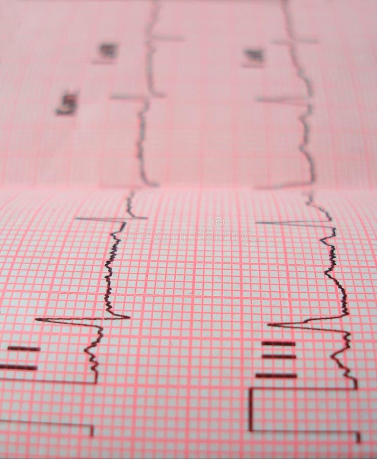 De analyse van het hart stock afbeeldingen