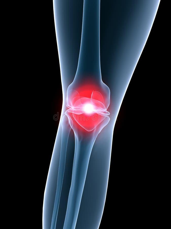 De anatomie-pijnlijke knie van de röntgenstraal stock illustratie