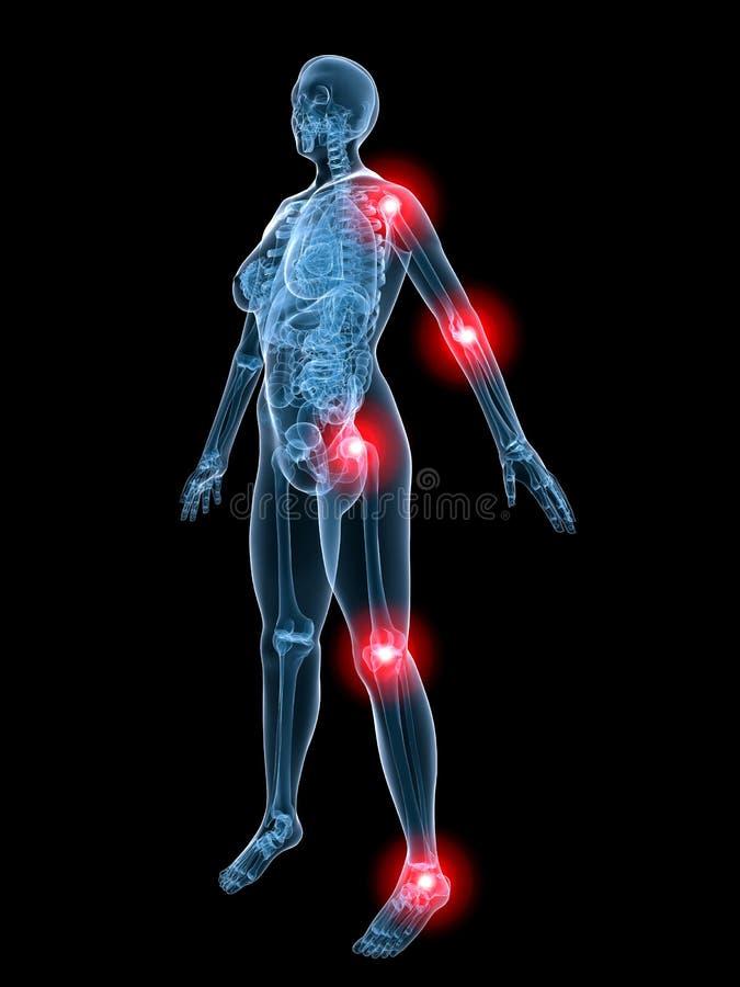 De anatomie-pijnlijke verbindingen van de röntgenstraal stock illustratie