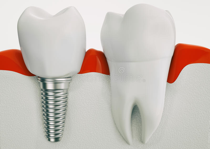 De anatomie van gezonde tanden en tandimplant in kaak benen - het 3d teruggeven uit stock illustratie