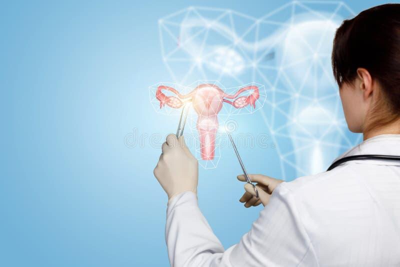 De arts behandelt de baarmoeder van vrouwen stock foto