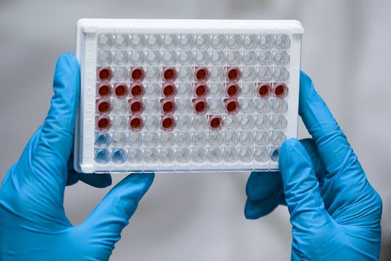 De arts houdt microplate met HIV afkorting stock fotografie