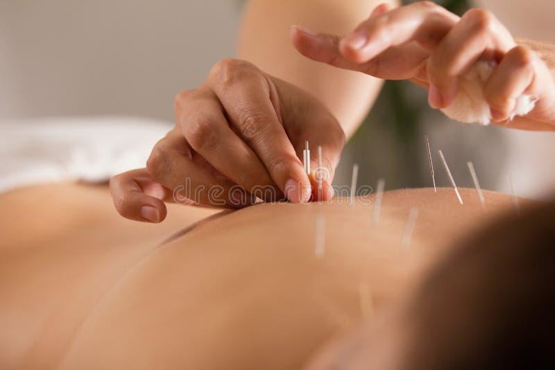 De arts plakt naalden in het meisjes` s lichaam op de acupunctuur - sluit omhoog royalty-vrije stock foto