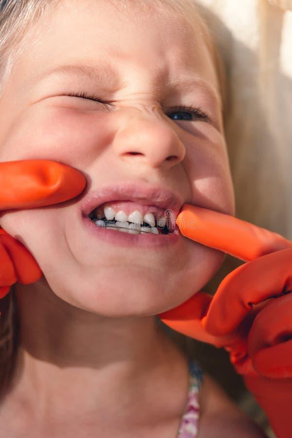 De arts probeert om de mond van een klein meisje met een orthodontisch toestel en bochtige tanden te zien royalty-vrije stock foto's