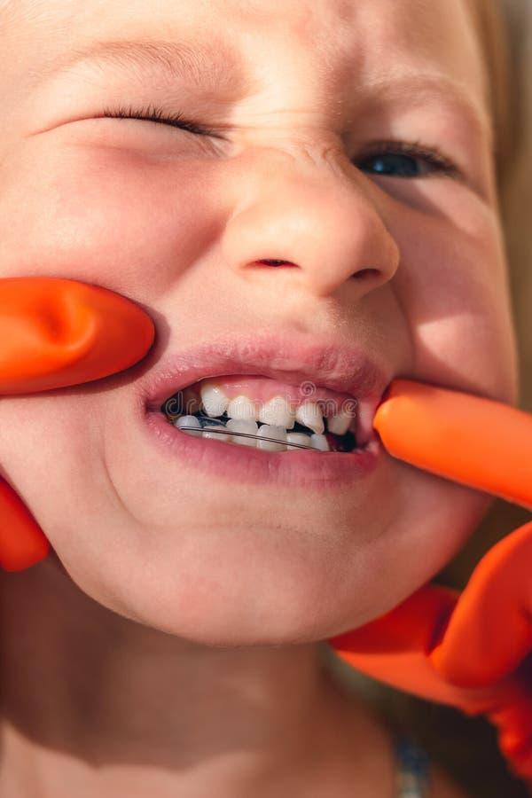 De arts probeert om de mond van een klein meisje met een orthodontisch toestel en bochtige tanden te zien royalty-vrije stock foto