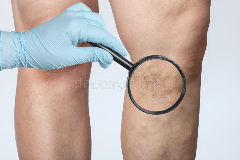 De arts toont de verwijding van kleine bloedvaten van de huid op het been Medische keuring en behandeling van Telangiectasia royalty-vrije stock foto