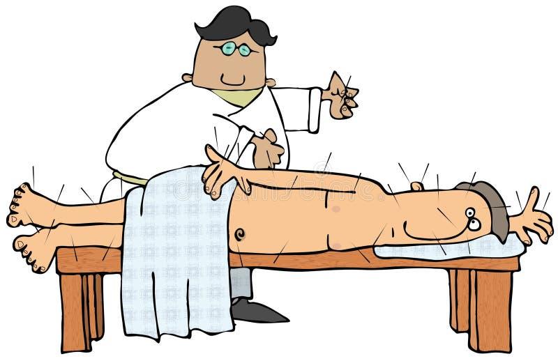 De Arts van de acupunctuur stock illustratie