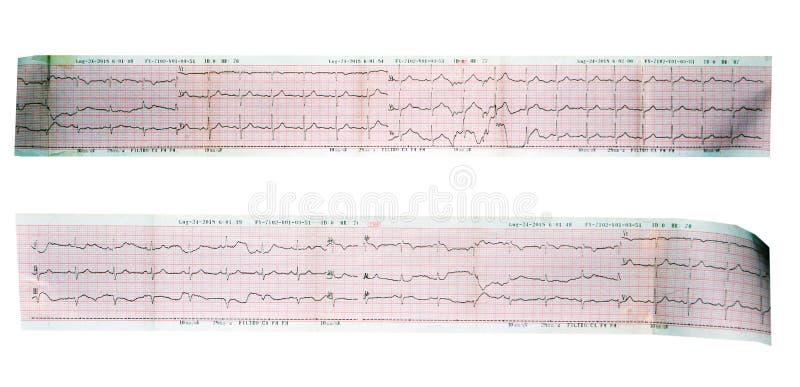 De asmening van de echocardiogramlezing, ECG, electrocardiogram royalty-vrije stock foto