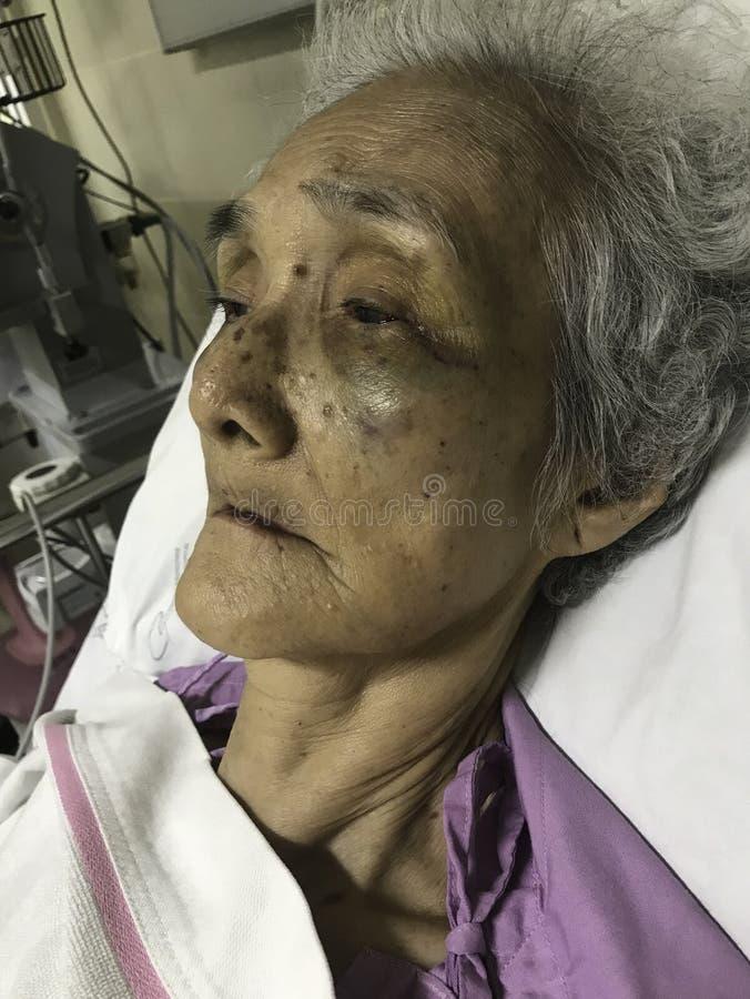 De Aziatische hogere vrouwenpatiënt die in bed bij het ziekenhuis, Virusbesmetting, Lage trombocytten, Kneuzingen, trombocytten l stock foto