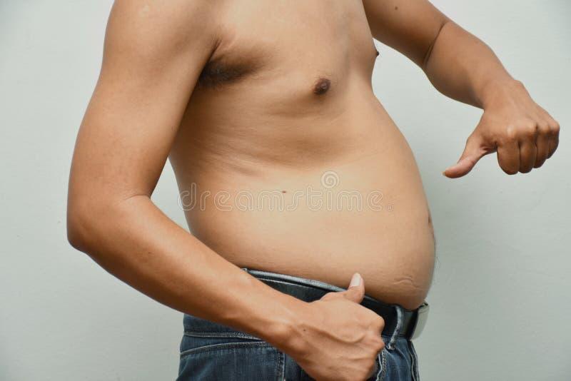 De Aziatische vette mens heeft cholesterol Hij toont bovenmatig vet van de buik royalty-vrije stock foto's